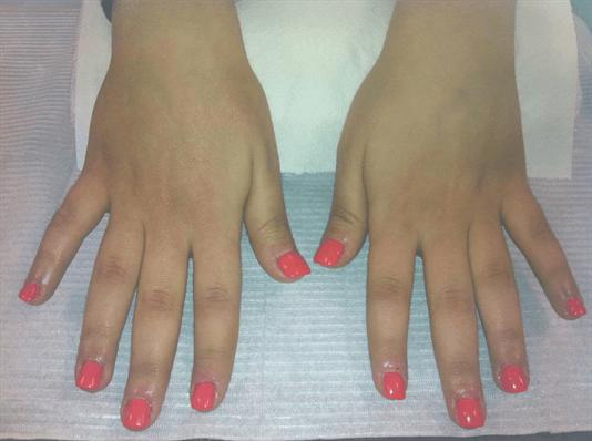 Reconstruction ongles rongés/gel couleur