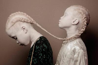 Lara y Mara: las gemelas albinas que están revolucionando el mundo de la moda