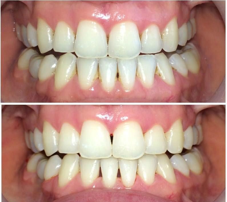 Limpieza Oral