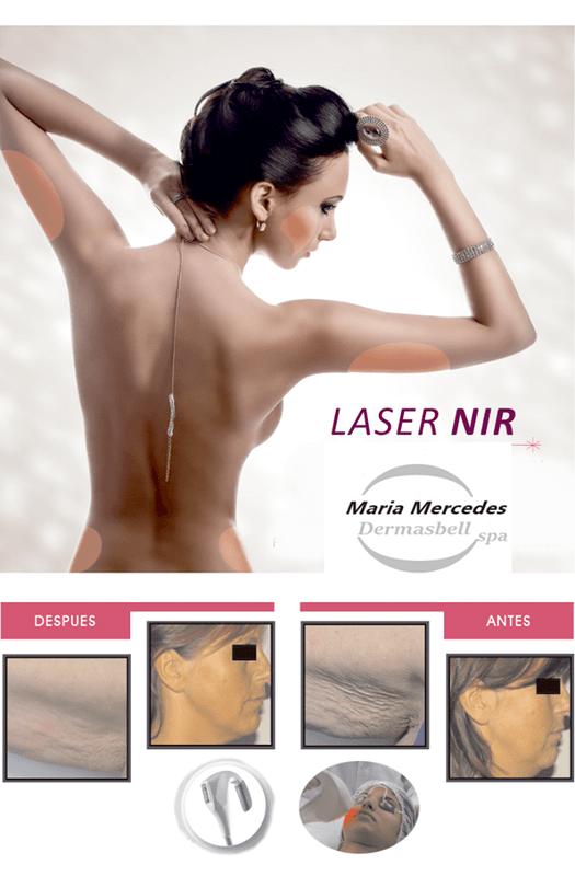 Maria Mercedes Láser y Cirugía Estética